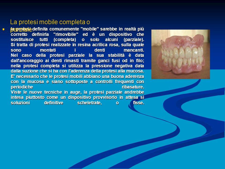 la protesi definita comunemente mobile sarebbe in realtà più corretto definirla rimovibile ed è un dispositivo che sostituisce tutti (completa) o solo alcuni (parziale).