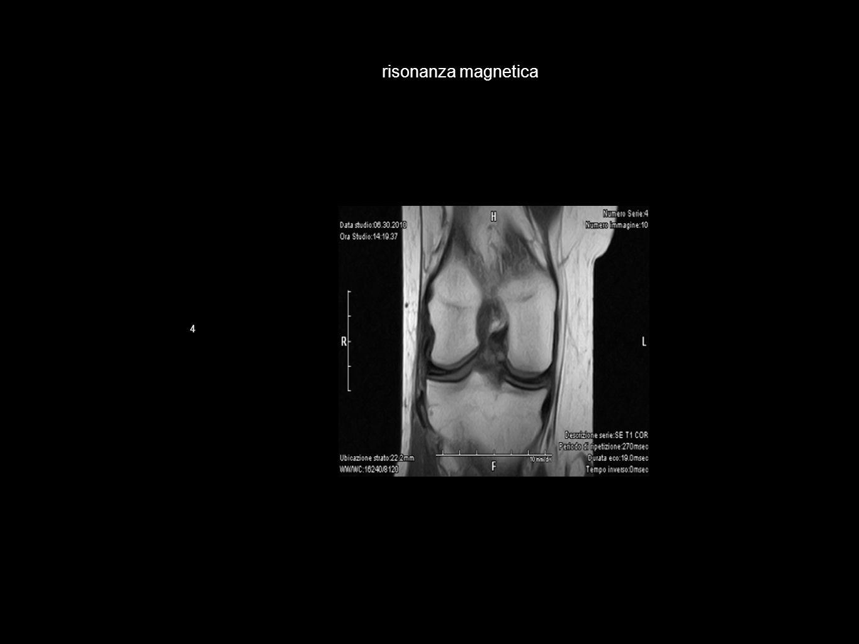 risonanza magnetica 4