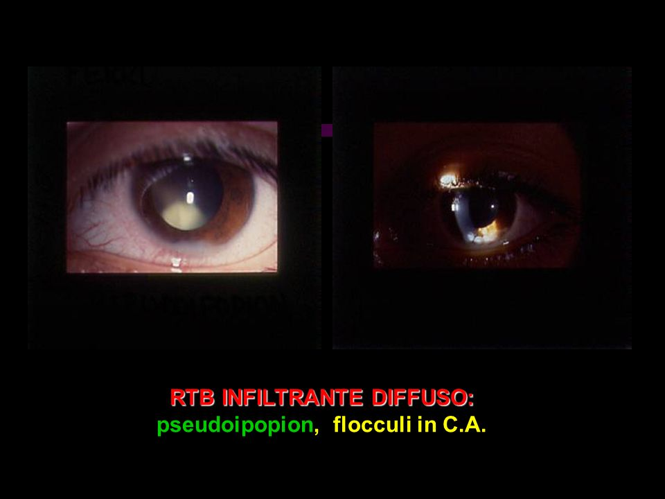 RTB INFILTRANTE DIFFUSO: RTB INFILTRANTE DIFFUSO: pseudoipopion, flocculi in C.A.
