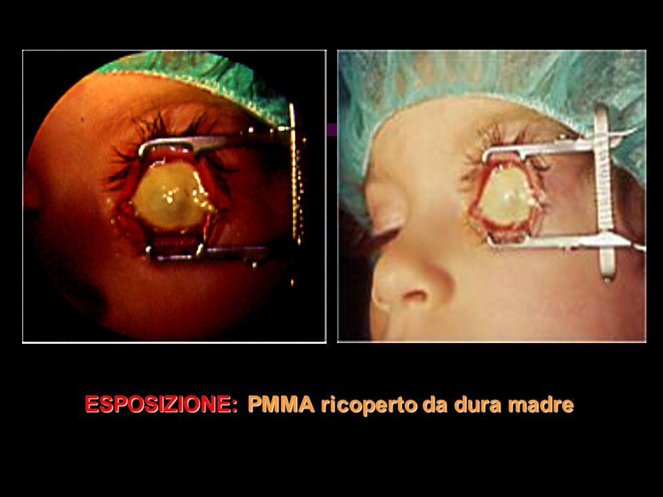 ESPOSIZIONE: PMMA ricoperto da dura madre