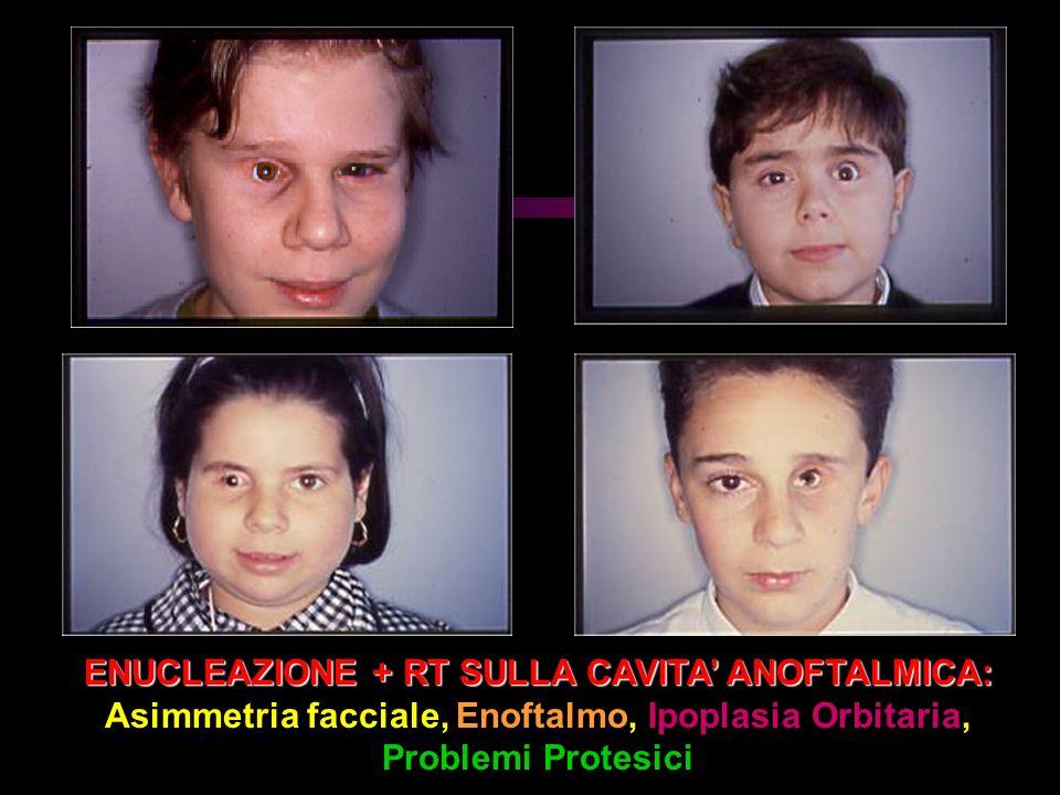 ENUCLEAZIONE + RT SULLA CAVITA ANOFTALMICA: Asimmetria facciale, Enoftalmo, Ipoplasia Orbitaria, Problemi Protesici