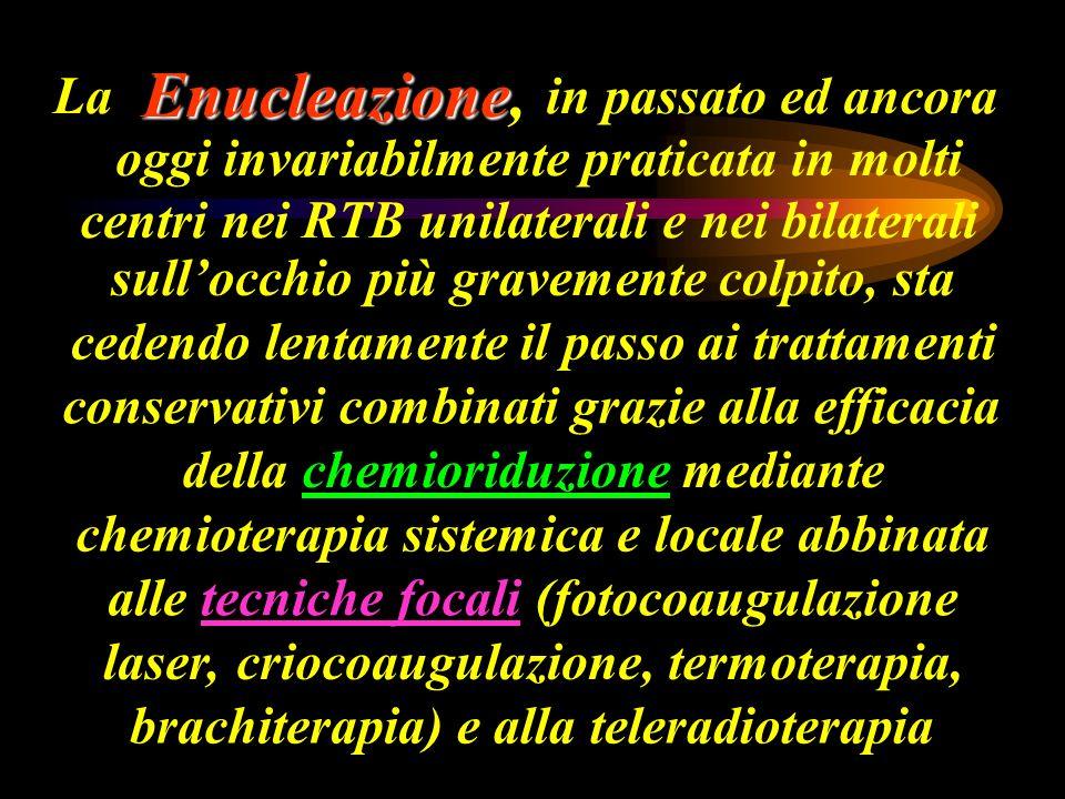 La Enucleazione Enucleazione, in passato ed ancora oggi invariabilmente praticata in molti centri nei RTB unilaterali e nei bilaterali sullocchio più