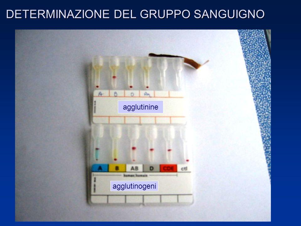 RICHIESTA di sangue ed emocomponenti (D.M.3/5/2005) DATI IDENTIFICATIVI DEL PAZIENTE Cognome Nome Data di nascita Idicazione alla trasfusione Pregresse trasfusioni o gravidanze Tipo di emocomponente richiesto Grado di urgenza FIRMA DEL MEDICO