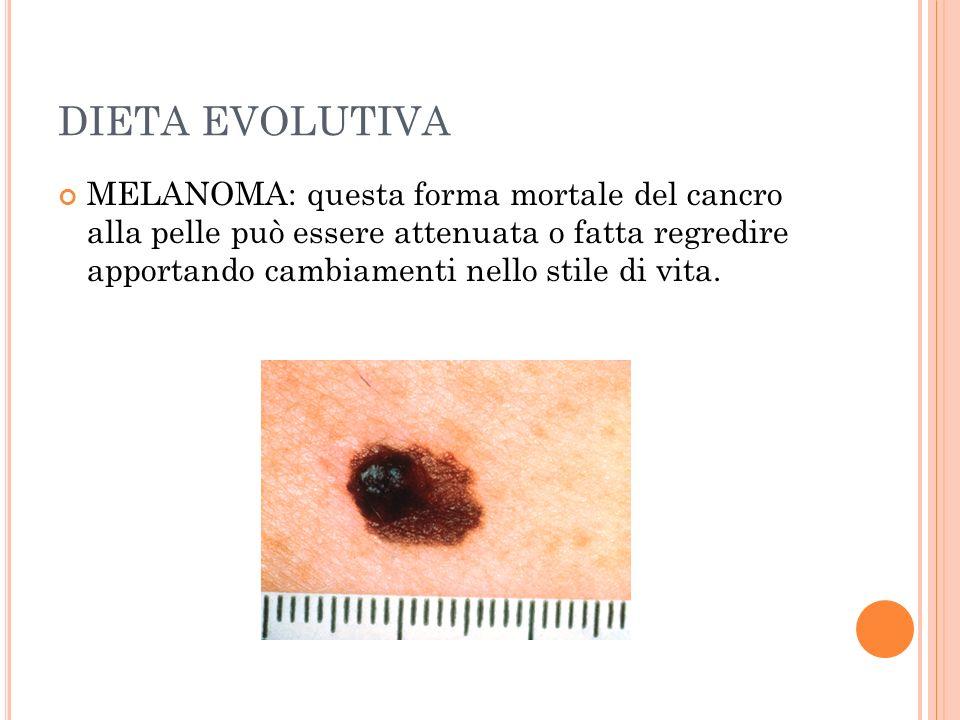 DIETA EVOLUTIVA MELANOMA: questa forma mortale del cancro alla pelle può essere attenuata o fatta regredire apportando cambiamenti nello stile di vita