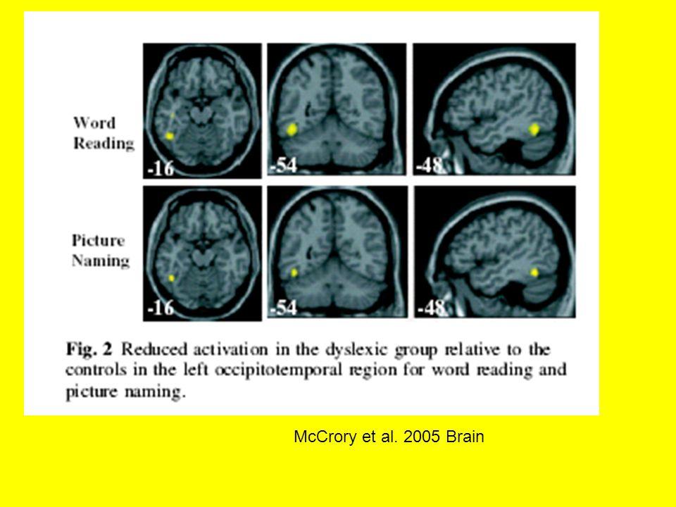 McCrory et al. 2005 Brain