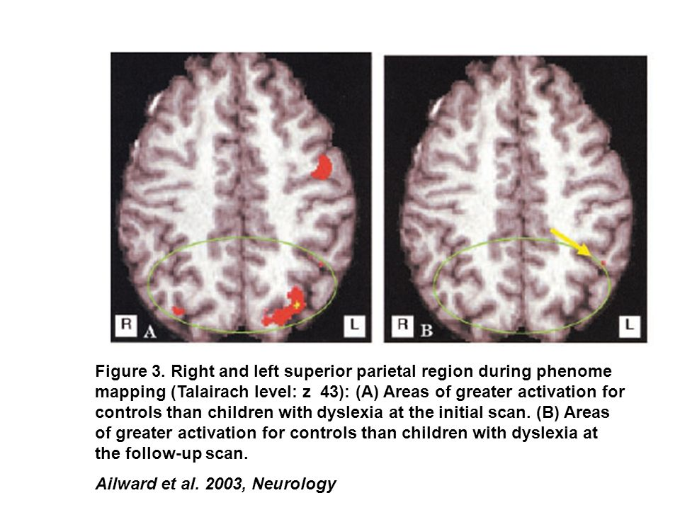 Figure 3. Right and left superior parietal region during phenome mapping (Talairach level: z 43): (A) Areas of greater activation for controls than ch