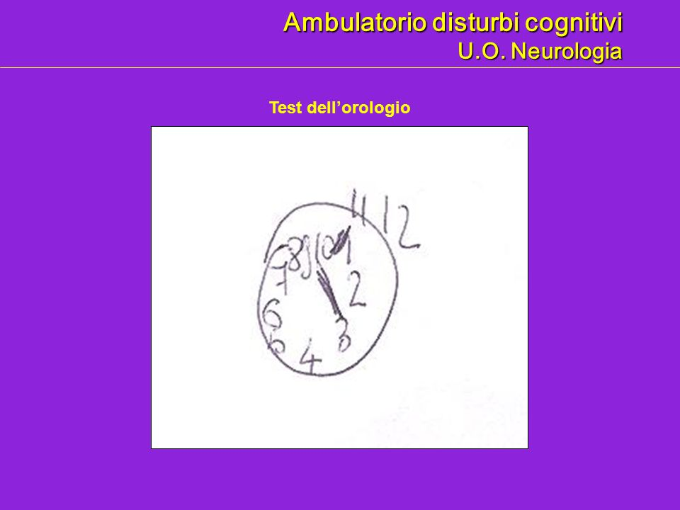 Ambulatorio disturbi cognitivi U.O. Neurologia Test dellorologio