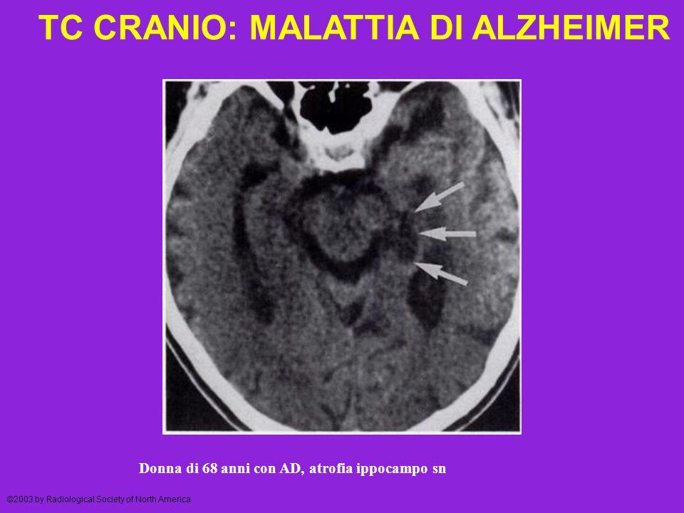 TC CRANIO: MALATTIA DI ALZHEIMER ©2003 by Radiological Society of North America Donna di 68 anni con AD, atrofia ippocampo sn