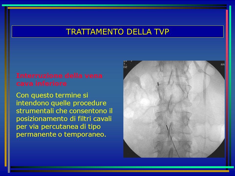 TRATTAMENTO DELLA TVP Interruzione della vena cava inferiore Con questo termine si intendono quelle procedure strumentali che consentono il posizionam