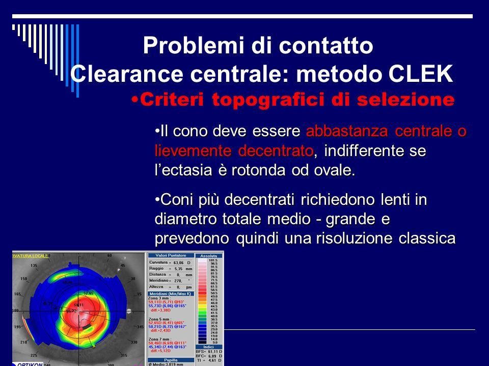 Problemi di contatto Clearance centrale: metodo CLEK Criteri topografici di selezione Il cono deve essere abbastanza centrale o lievemente decentrato,