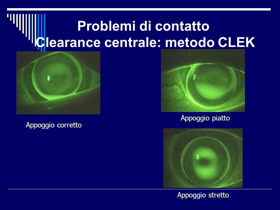 Problemi di contatto Clearance centrale: metodo CLEK Appoggio corretto Appoggio piatto Appoggio stretto