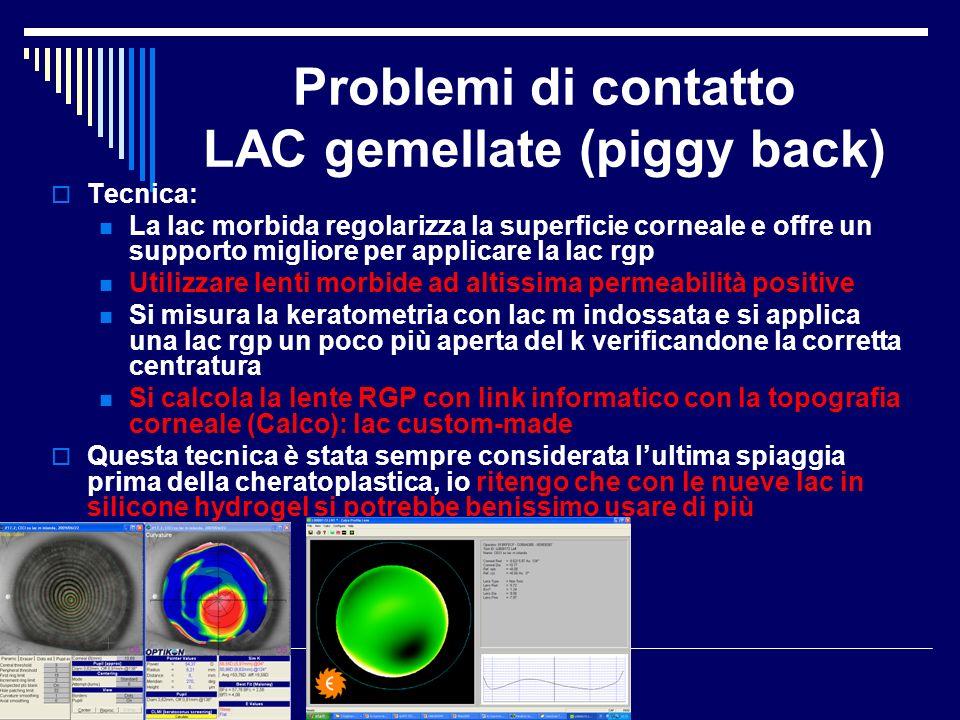 Problemi di contatto LAC gemellate (piggy back) Tecnica: La lac morbida regolarizza la superficie corneale e offre un supporto migliore per applicare