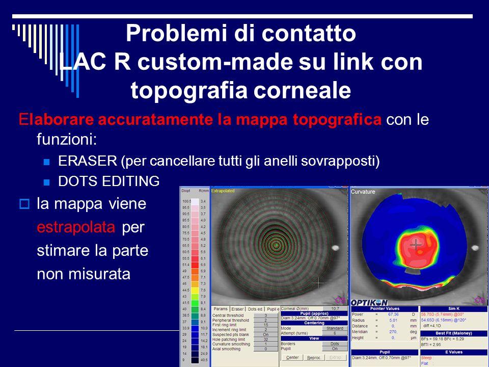 Problemi di contatto LAC R custom-made su link con topografia corneale Elaborare accuratamente la mappa topografica con le funzioni: ERASER (per cance