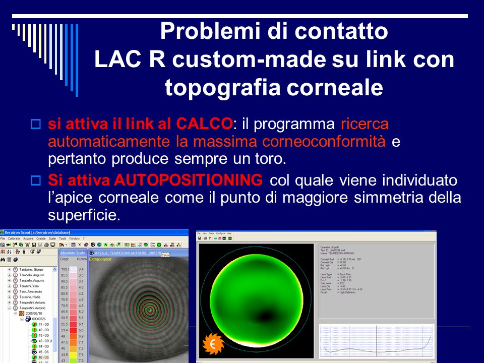 Problemi di contatto LAC R custom-made su link con topografia corneale si attiva il link al CALCO: il programma ricerca automaticamente la massima cor