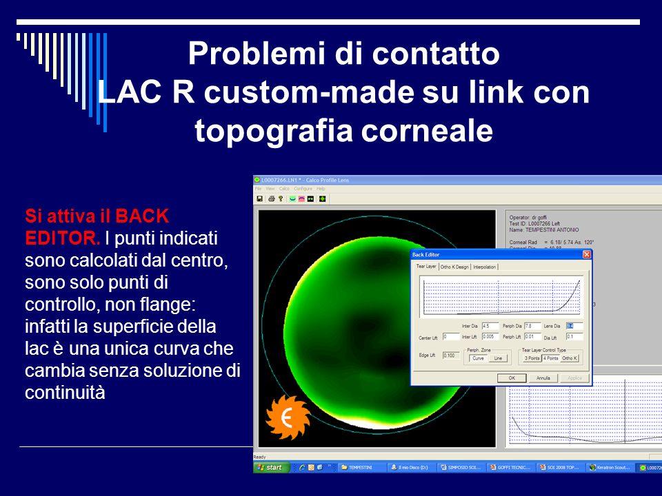 Problemi di contatto LAC R custom-made su link con topografia corneale Si attiva il BACK EDITOR. I punti indicati sono calcolati dal centro, sono solo