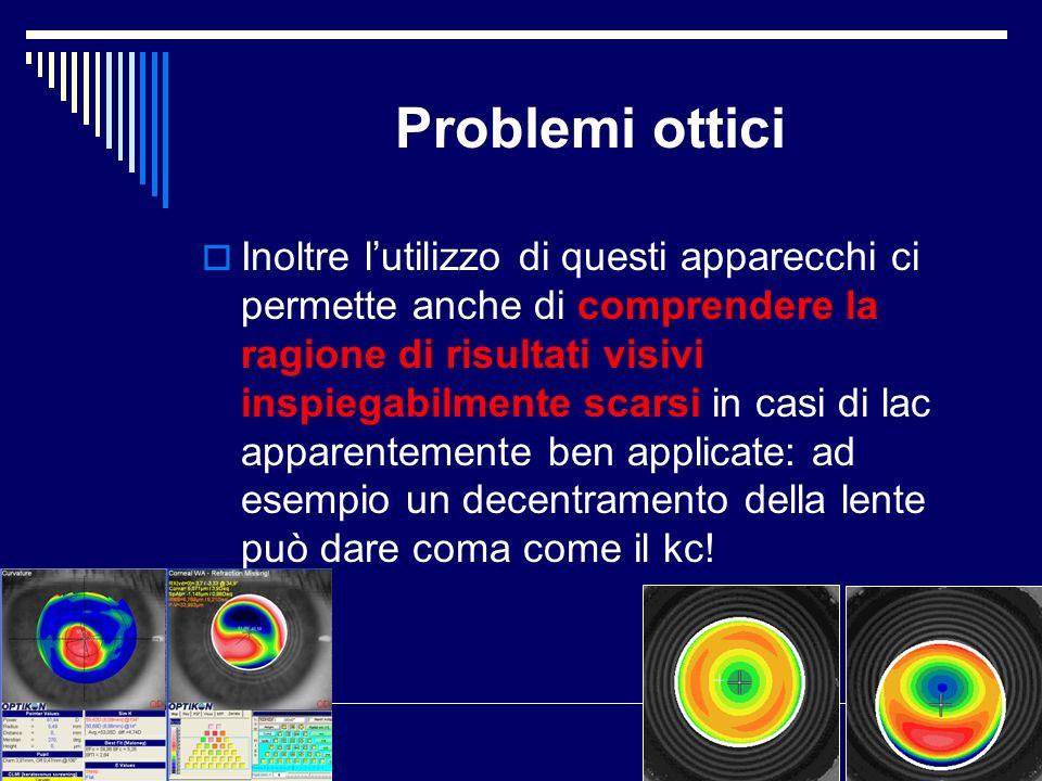 Problemi ottici Inoltre lutilizzo di questi apparecchi ci permette anche di comprendere la ragione di risultati visivi inspiegabilmente scarsi in casi