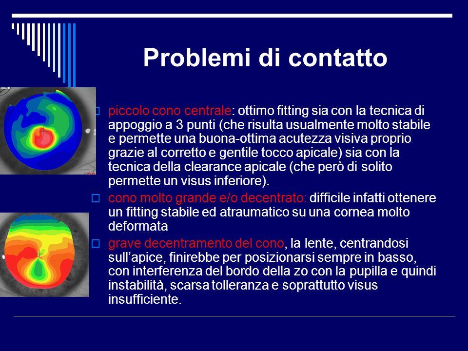 Problemi di contatto piccolo cono centrale: ottimo fitting sia con la tecnica di appoggio a 3 punti (che risulta usualmente molto stabile e permette u
