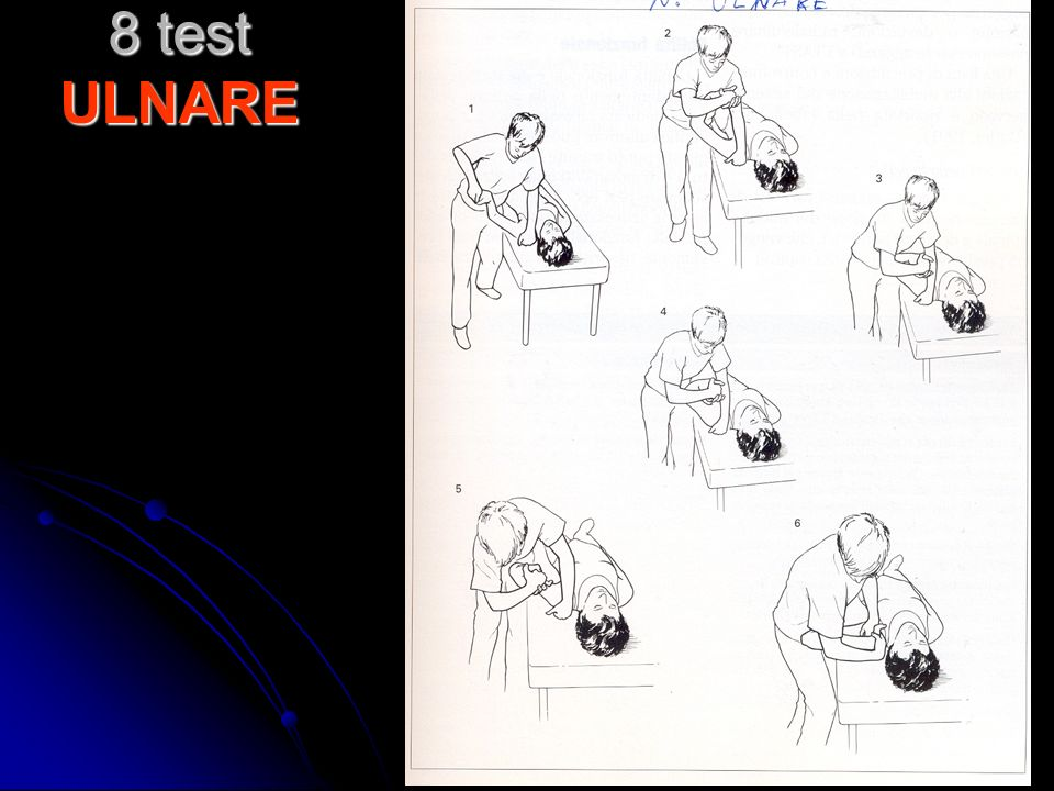 8 test ULNARE