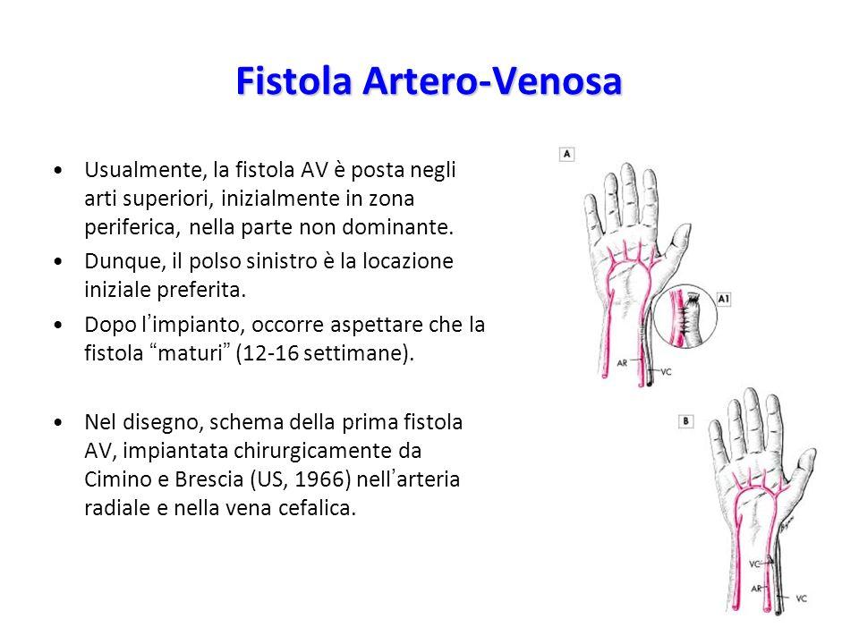 Usualmente, la fistola AV è posta negli arti superiori, inizialmente in zona periferica, nella parte non dominante. Dunque, il polso sinistro è la loc