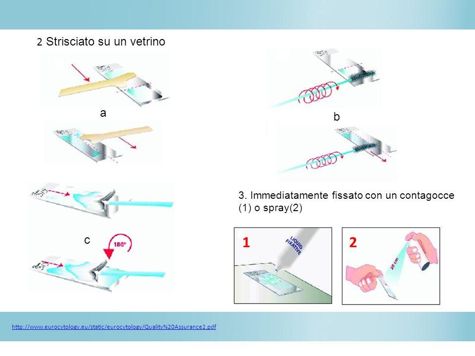 2 Strisciato su un vetrino 3. Immediatamente fissato con un contagocce (1) o spray(2) a c b 21 http://www.eurocytology.eu/static/eurocytology/Quality%