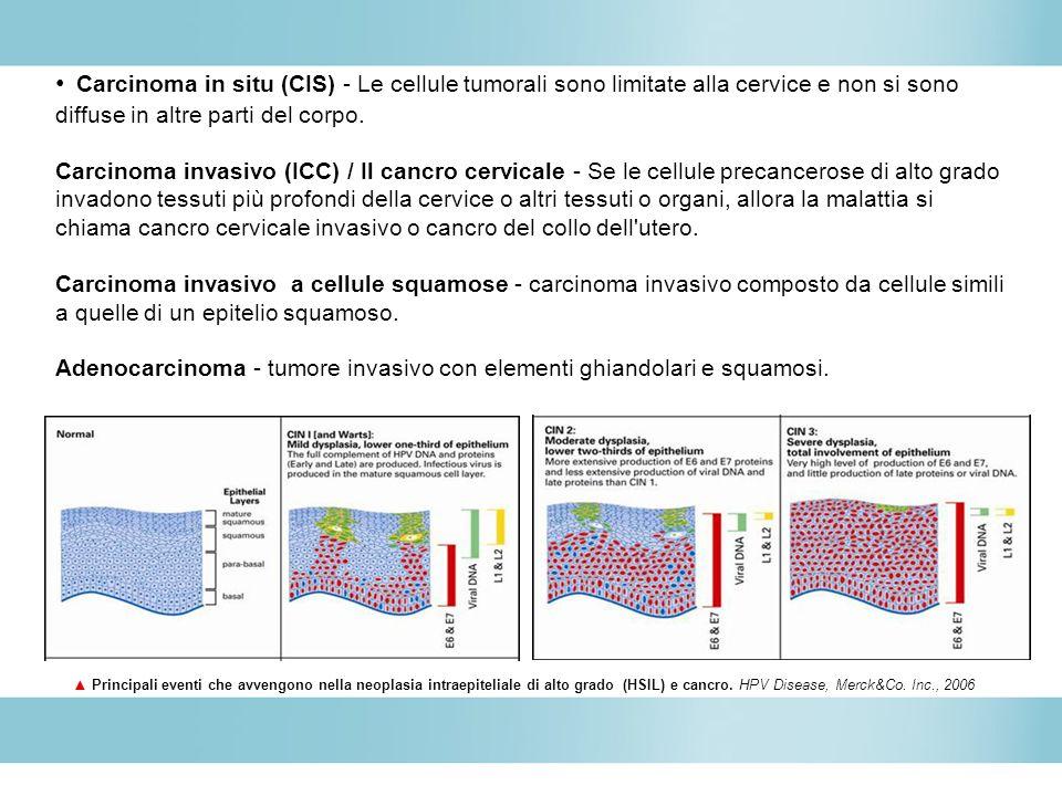 Carcinoma in situ (CIS) - Le cellule tumorali sono limitate alla cervice e non si sono diffuse in altre parti del corpo. Carcinoma invasivo (ICC) / Il