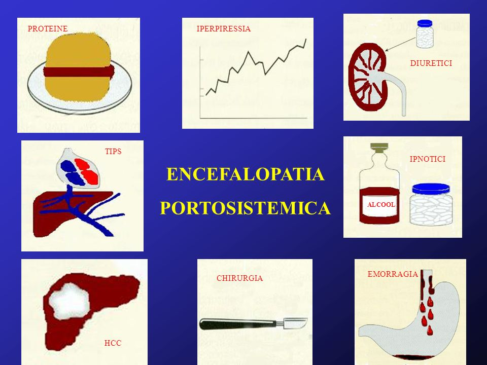 ENCEFALOPATIA PORTOSISTEMICA ALCOOL DIURETICI IPNOTICI PROTEINE TIPS HCC CHIRURGIA IPERPIRESSIA EMORRAGIA