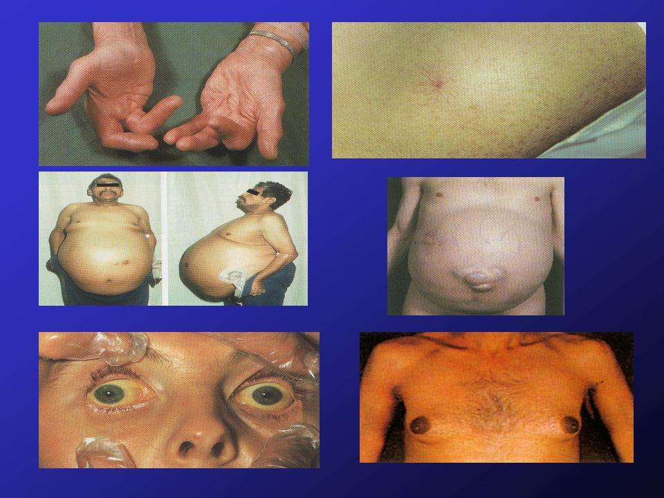 LABORATORIO FEGATO Emocromo Transaminasi Gamma-gt Fosfatasi Alcalina Bilirubina T.