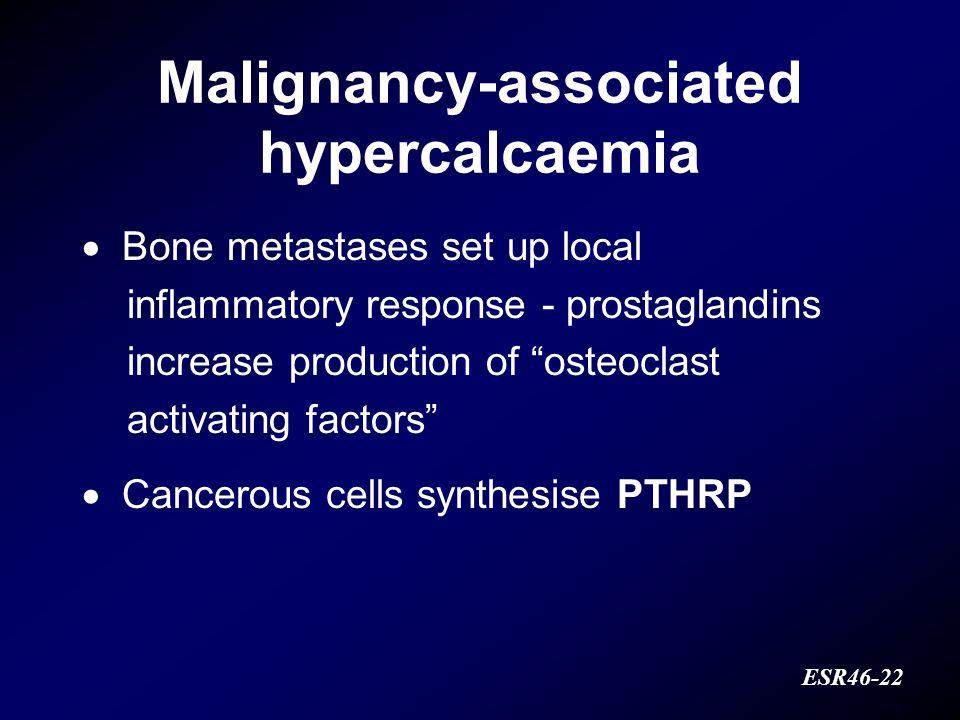Malignancy-associated hypercalcaemia ESR46-22 Bone metastases set up local inflammatory response - prostaglandins increase production of osteoclast ac