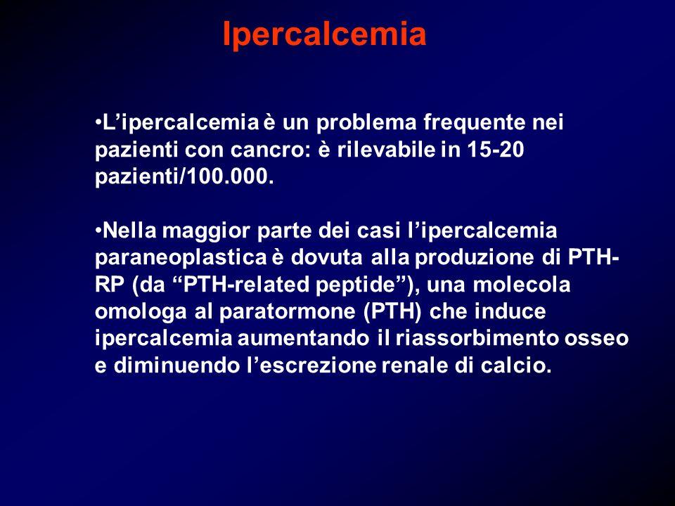 Ipercalcemia Lipercalcemia è un problema frequente nei pazienti con cancro: è rilevabile in 15-20 pazienti/100.000. Nella maggior parte dei casi liper