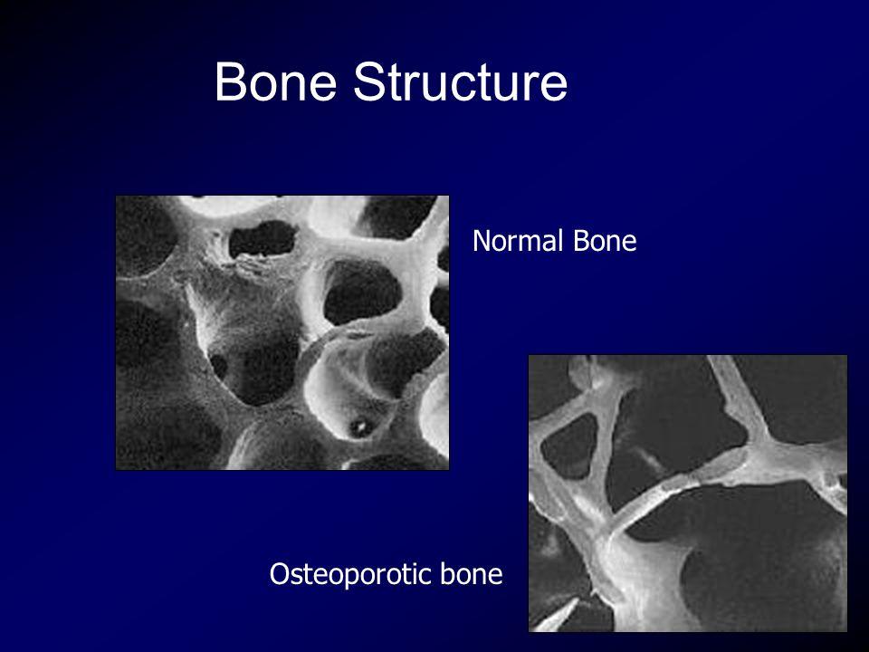 Bone Structure Normal Bone Osteoporotic bone