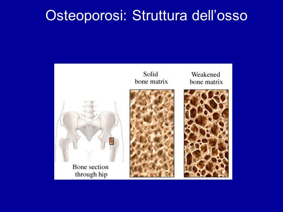 OSTEOPOROSI : TERAPIA 1.Terapia ormonale sostitutiva 2.