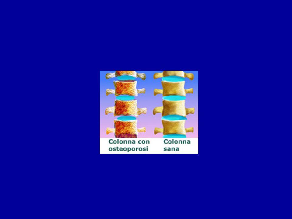 Losteoporosi è responsabile di oltre 1,5 milioni di fratture allanno negli USA 300 000 fratture del bacino 700 000 fratture vertebrali 250 000 fratture del polso 300 000 altre fratture Femore-bacino-rachide-polso-coste Il rischio di fratture per una donna è pari alla somma del rischio di tumori della mammella, utero ed ovaio OSTEOPOROSI E FRATTURE