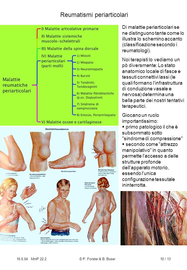 16.6.04 MmP 22.2© P. Forster & B. Buser10 / 13 Reumatismi periarticolari Di malattie periarticolari se ne distinguono tante come lo illustra lo schemi