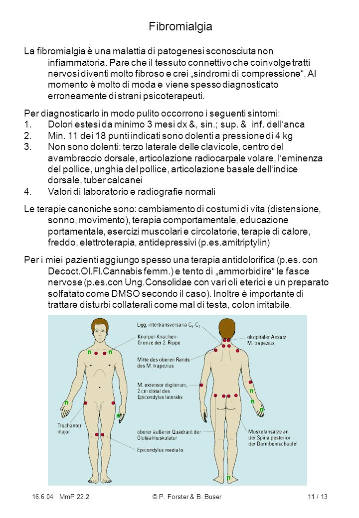 16.6.04 MmP 22.2© P. Forster & B. Buser11 / 13 Fibromialgia La fibromialgia è una malattia di patogenesi sconosciuta non infiammatoria. Pare che il te