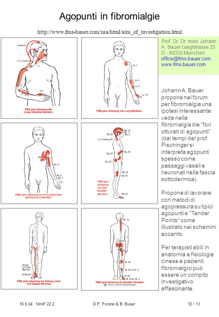 16.6.04 MmP 22.2© P. Forster & B. Buser12 / 13 Agopunti in fibromialgie http://www.fms-bauer.com/usa/html/aim_of_investigation.html Johann A. Bauer pr