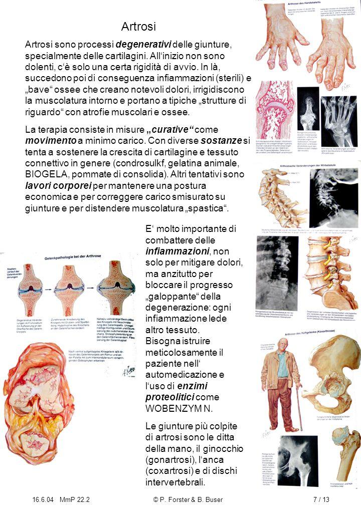 16.6.04 MmP 22.2© P. Forster & B. Buser7 / 13 Artrosi Artrosi sono processi degenerativi delle giunture, specialmente delle cartilagini. Allinizio non