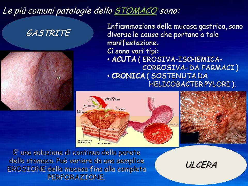 GASTRITE Le più comuni patologie dello STOMACO sono: ULCERA Infiammazione della mucosa gastrica, sono diverse le cause che portano a tale manifestazio