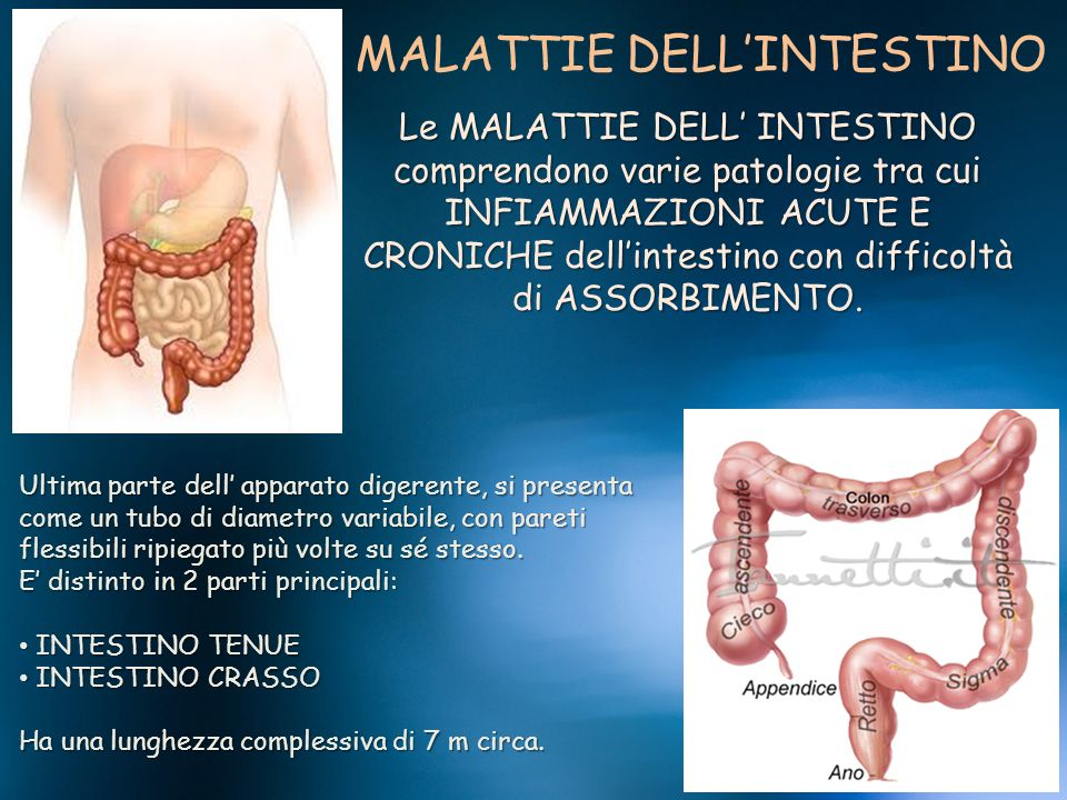 MALATTIE DELLINTESTINO Le MALATTIE DELL INTESTINO comprendono varie patologie tra cui INFIAMMAZIONI ACUTE E CRONICHE dellintestino con difficoltà di A