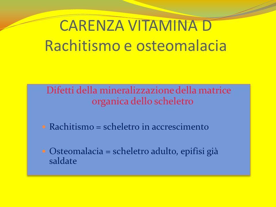 CARENZA VITAMINA D Rachitismo e osteomalacia Difetti della mineralizzazione della matrice organica dello scheletro Rachitismo = scheletro in accrescim