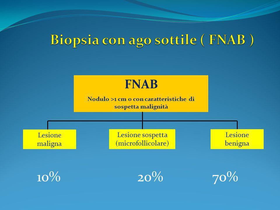 FNAB Nodulo >1 cm o con caratteristiche di sospetta malignità Lesione maligna Lesione sospetta (microfollicolare) Lesione benigna 10% 20% 70%