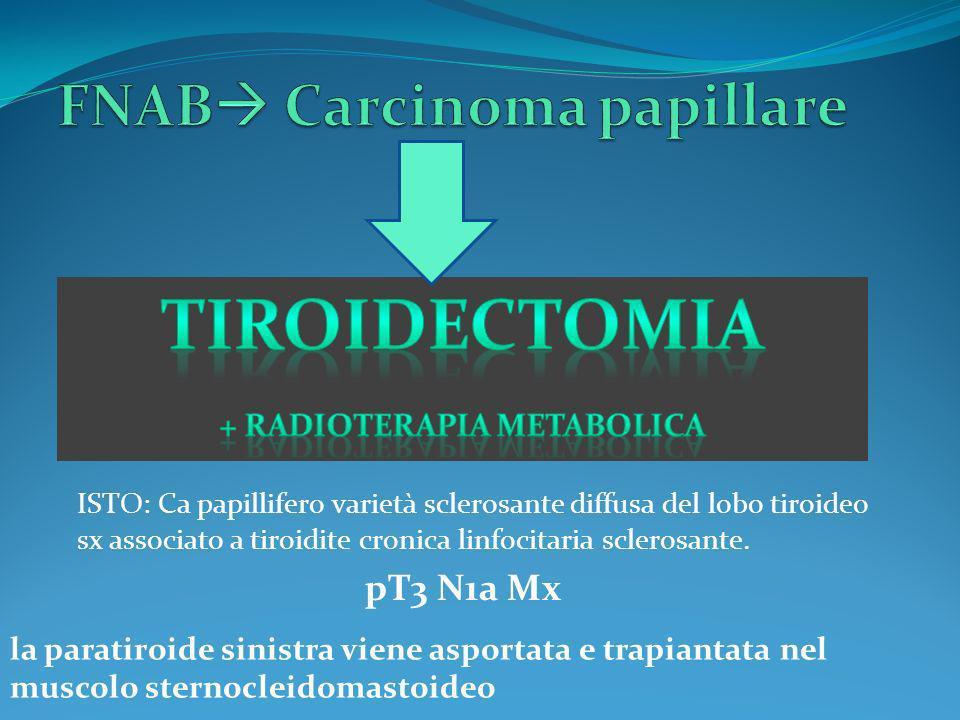 ISTO: Ca papillifero varietà sclerosante diffusa del lobo tiroideo sx associato a tiroidite cronica linfocitaria sclerosante. pT3 N1a Mx la paratiroid