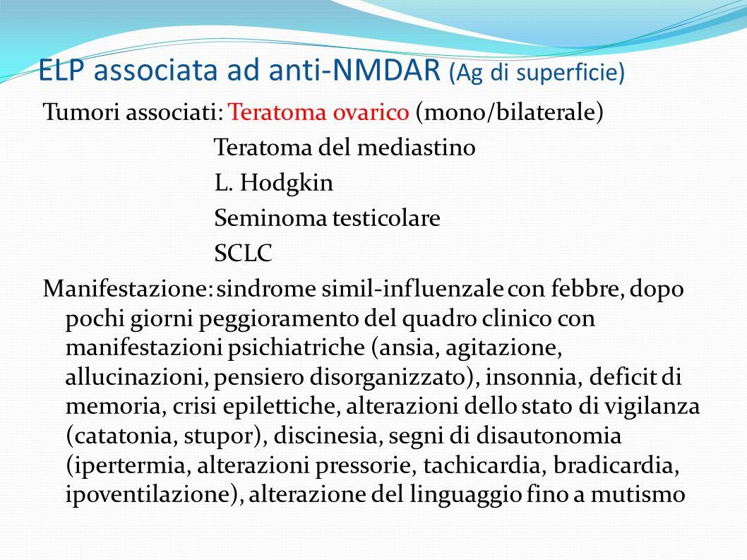 ELP associata ad anti-NMDAR (Ag di superficie) Tumori associati: Teratoma ovarico (mono/bilaterale) Teratoma del mediastino L.