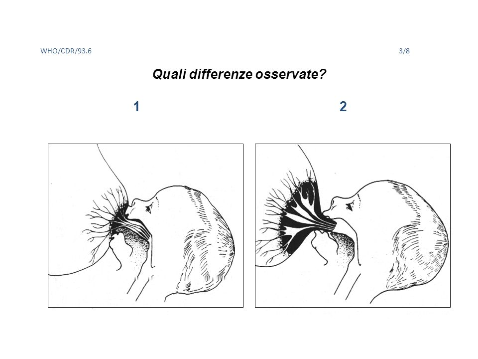 Quali differenze osservate? WHO/CDR/93.63/8 1 2