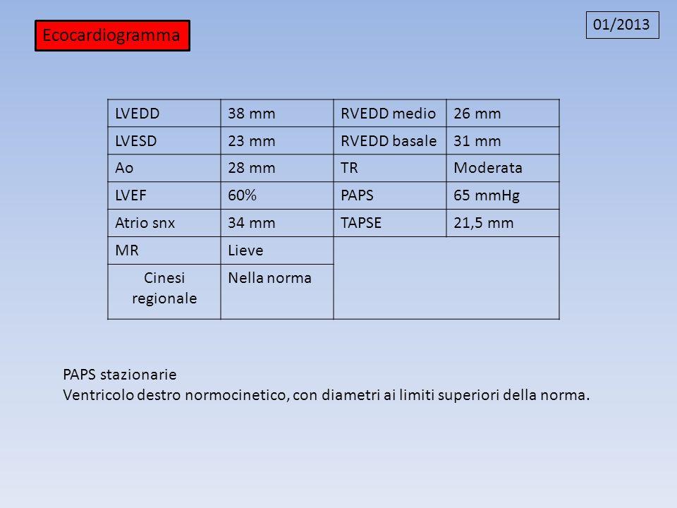 Ecocardiogramma 01/2013 LVEDD38 mmRVEDD medio26 mm LVESD23 mmRVEDD basale31 mm Ao28 mmTRModerata LVEF60%PAPS65 mmHg Atrio snx34 mmTAPSE21,5 mm MRLieve