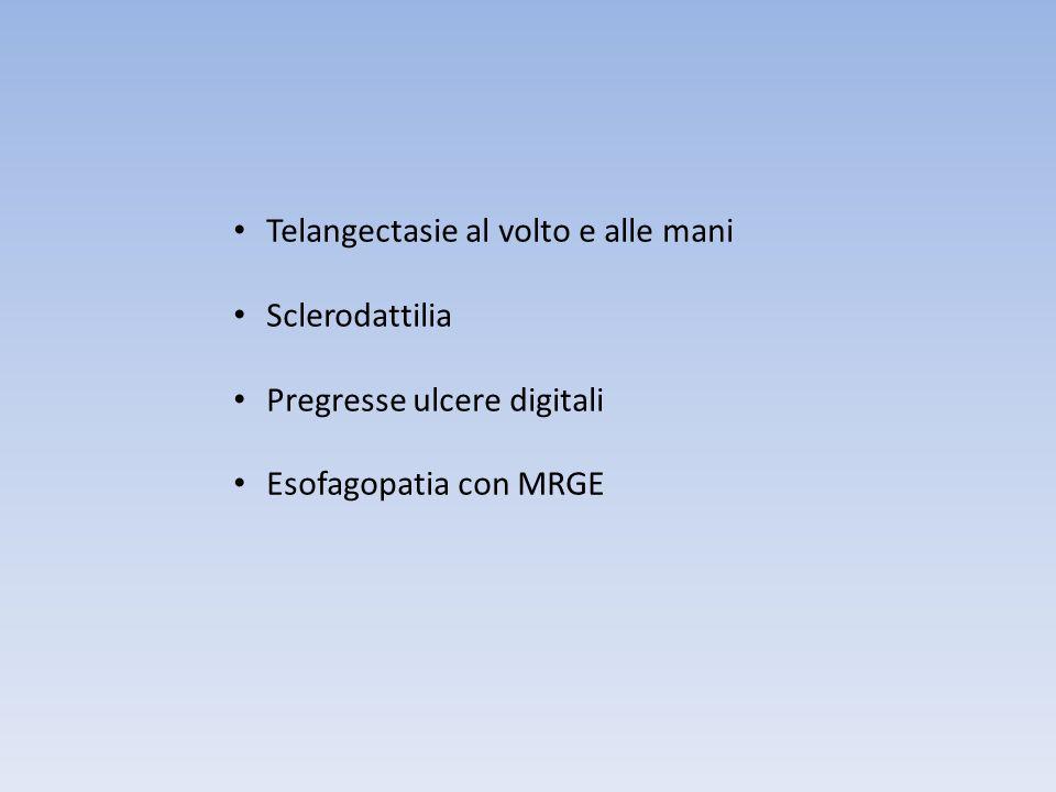 Telangectasie al volto e alle mani Sclerodattilia Pregresse ulcere digitali Esofagopatia con MRGE