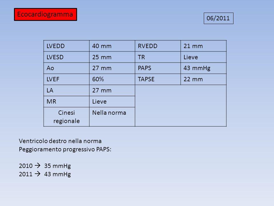 LVEDD 43 mmRVEDD31 mm LVESD 25 mmTRImportante Ao30 mmPAPS 80 mmHg LVEF55 %TAPSE19 mm LA36 mm MRLieve Cinesi regionale Nella norma Ecocardiogramma 10/2013 Regressione sostanziale del versamento pericardico Riduzione della severità del sovraccarico baro-volumetrico del VD PAPS stazionarie