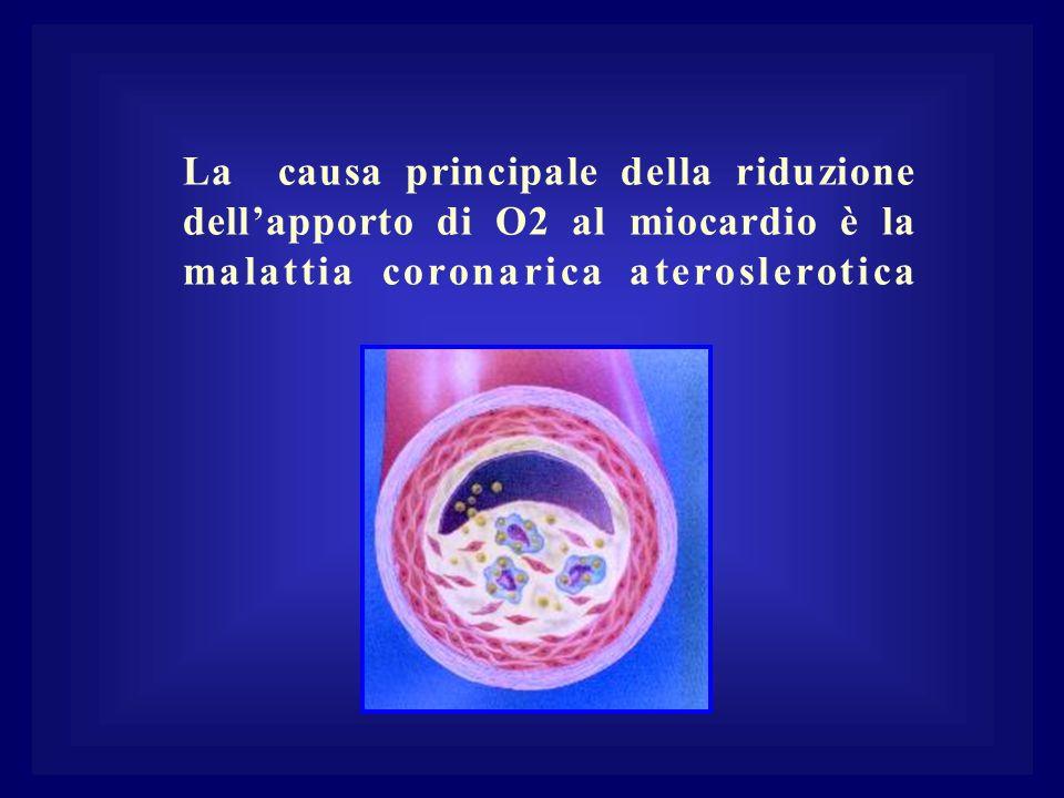 La causa principale della riduzione dellapporto di O2 al miocardio è la malattia coronarica ateroslerotica