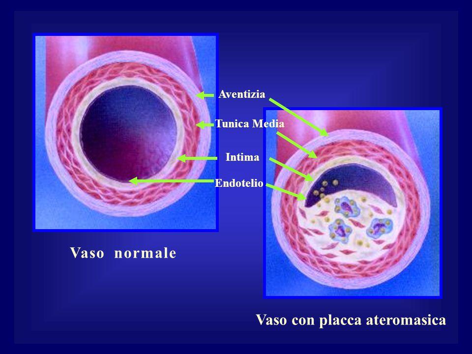Vaso normale Vaso con placca ateromasica Aventizia Intima Tunica Media Endotelio