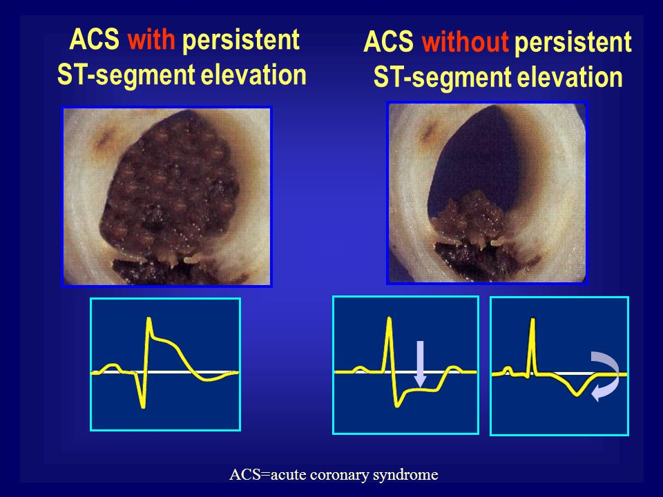 ACS without persistent ST-segment elevation ACS with persistent ST-segment elevation ACS=acute coronary syndrome