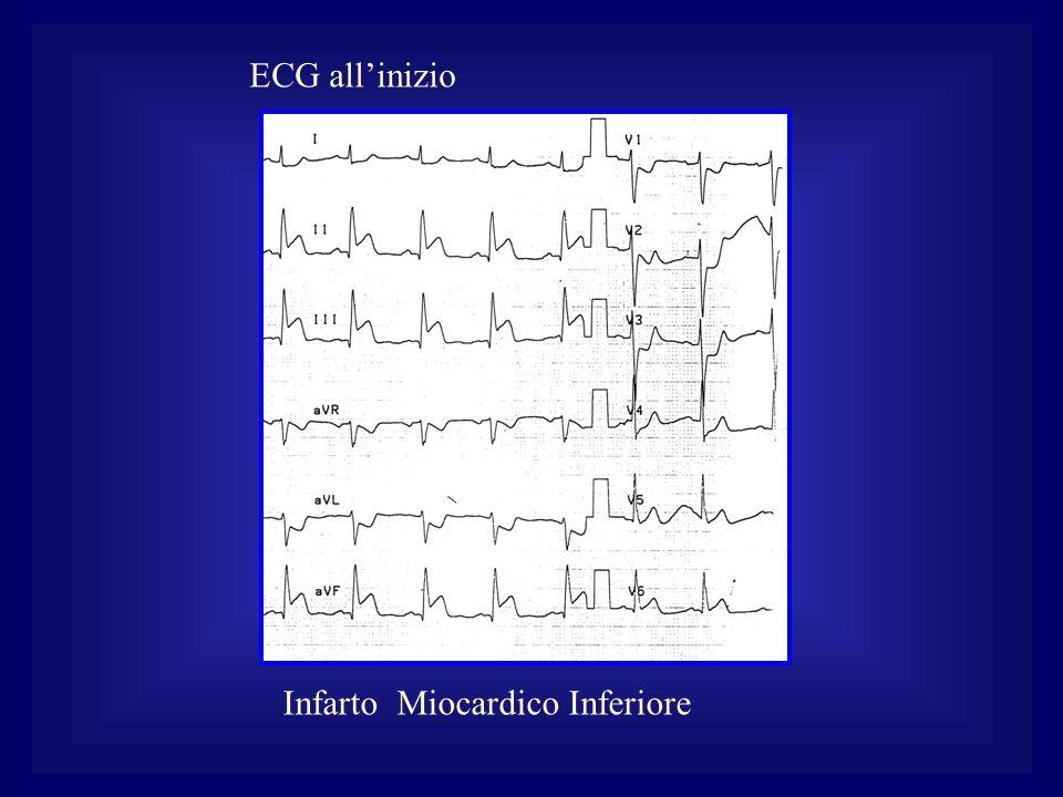 Infarto Miocardico Inferiore ECG allinizio